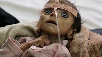 YEMEN FAMINE